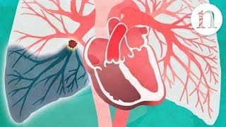Download Pulmonary embolism: The route to recovery Video