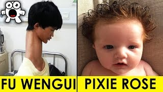 Download Top 10 Real Kids Born With Unbelievable Incredible Features Video