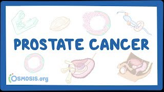 Download Prostate cancer Video