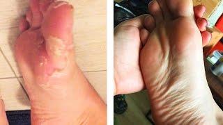 Download People Peel Dead Skin From Their Feet Video