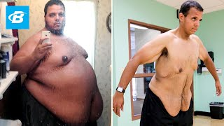 Download The Incredible Shrinking Man | Jesse Shand Lost 350 Pounds Video
