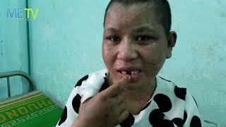 Download Đưa Y Nhiều cô gái bị tra tấn đi giám định thương tích Video