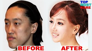 Download 50 Korean Plastic Surgery Before and After Photos Video