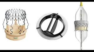 Download Heart Valve Replacement Options Video