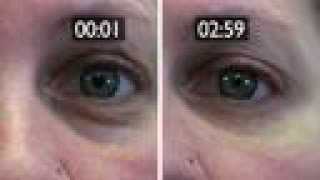 Download How To Get Rid Of Wrinkles And Eye Bags Without Surgery W/Plexaderm Video