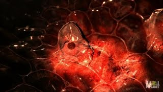 Download Catching a Horrifying Parasite That Liquifies Organs Video