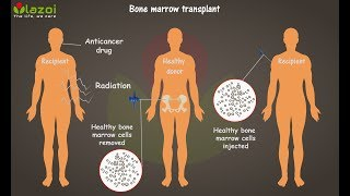 Download What is Bone Marrow Transplant - Complete guide about bone marrow transplantation, lazoi Video