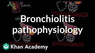 Download Bronchiolitis pathophysiology | Respiratory system diseases | NCLEX-RN | Khan Academy Video
