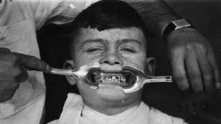 Download Top 10 Secrets Dentists Don't Want You To Know Video