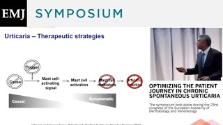 Download Optimizing the Patient Journey in Chronic Spontaneous Urticaria - Chairs Introduction Video