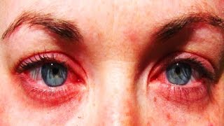 Download 25 Of The Most Common Allergies Video