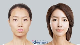 Download [id hospital review korean plastic surgery] amazing makeover show, Let Me In hospital Video
