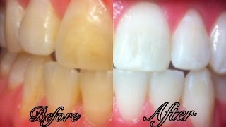 Download How To Whiten Teeth at Home in 3 Minutes Video