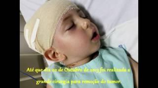 Download Tumor Cerebral Kaua (Astrocitoma) #Miniloks Video
