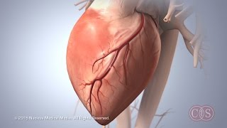 Download Symptoms of Sudden Cardiac Arrest | Cedars-Sinai Video