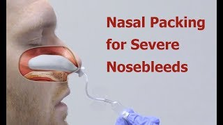Download Nasal Packing for Severe Nosebleeds Video