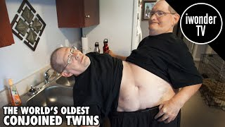 Download The Worlds Oldest Conjoined Twins Ronnie and Donnie Galyon Video