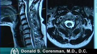 Download How to Read a MRI of Cervical Stenosis with Spinal Cord Injury | Spine Surgeon in Colorado Video