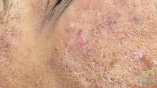 Download Black Head Extraction | Ezequiel | 1st Treatment Video