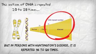 Download Huntington's Disease Video