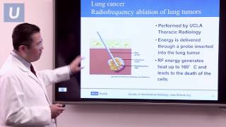 Download Treatment for Lung Cancer | #UCLAMDChat Webinars Video