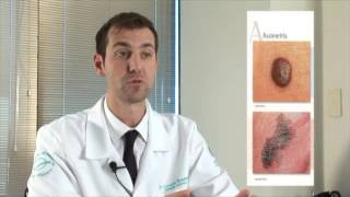 Download Sinais de alerta do Melanoma Video