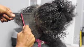 Download Picking BIG scalp flakes Psoriasis and Dermatitis SEW IN WEAVE REMOVAL Video