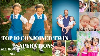 Download TOP 10 CONJOINED TWIN SEPARATIONS IN WORLD! Video