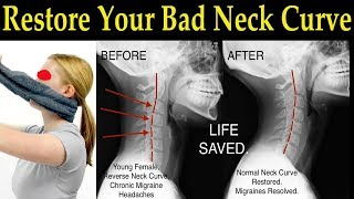 Download Restore Your Bad Neck Curve With a Simple Towel - Dr. Alan Mandell, D.C. Video