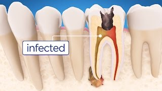Download Root Canal Treatment Step by Step Video