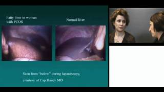 Download Polycystic Ovarian Syndrome Video