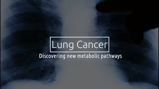 Download Small Cell Lung Cancer: Discovering New Metabolic Pathways Video