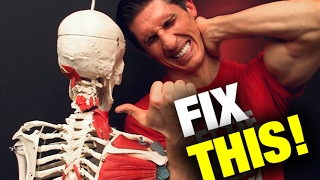 Download How to Fix a Stiff Neck in Seconds (THIS WORKS!) Video
