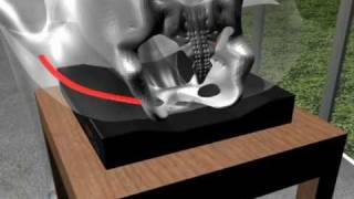 Download Relieve Tailbone / Coccyx and Sciatica Nerve Pain with the Sciata Seat Video