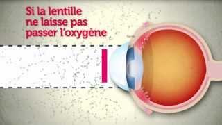Download Lentilles de contact : attention les yeux ! Video