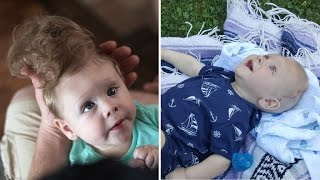 Download Baby Born with Brain Outside of Skull Gets Life-Changing Surgery Video