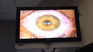Download My LASIK eye procedure-from 20/200 to 20/10 vision Video