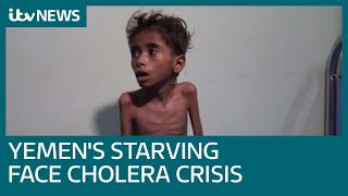 Download Yemen's starving now face world's worst cholera outbreak Video