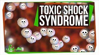 Download Toxic Shock Syndrome: Way Beyond Tampons Video