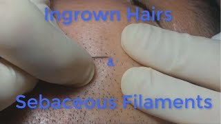 Download Ingrown Hairs and Sebaceous Filaments Video