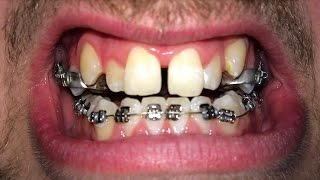 Download FULL BRACES TIME LAPSE Video
