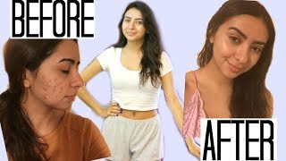 Download MY ACNE SKIN CARE ROUTINE Video