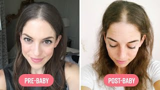 Download How I Coped With Extreme Hair Loss After Pregnancy I Mom Bod Video