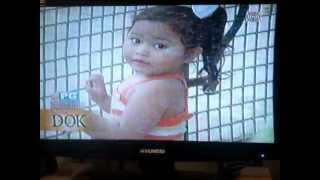 Download BATANG NAKALUNOK NG BUTONES IN SALAMAT DOK-JUNE 23,2012 Video