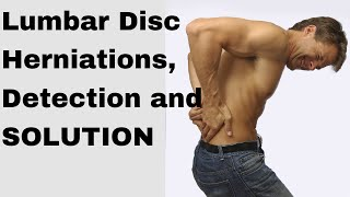 Download How to fix a herniated disc in the lumbar spine Video