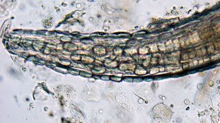 Download One Of The Rarest Human Parasites On Earth | Monsters Inside Me Video