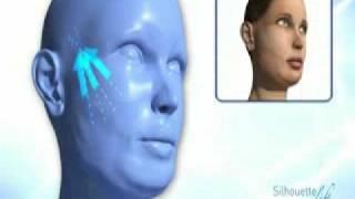Download Silhouette-Lift Procedure Video