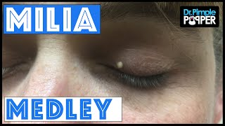 Download A Dr Pimple Popper Milia Medley Video