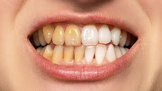 Download The BEST Way to Whiten Teeth in Photoshop Video