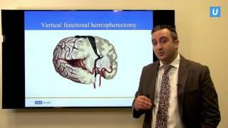 Download Hemispherectomy: When half the brain is better than the whole | UCLAMDCHAT Webinars Video